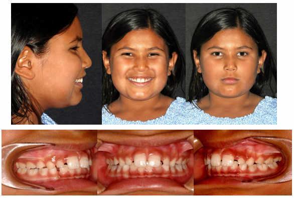 ortodoncia Interceptiva y Funcional