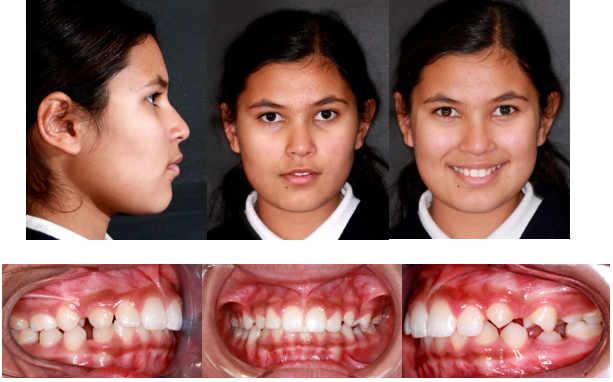 ortodoncia funcional e interceptiva