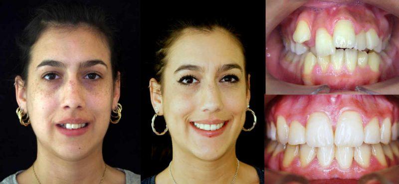 uando se coloca el microtornillo dental o apoyo óseao es recomendable un colutorio bucal antimicrobiano, que deberá usar dos veces al día, para evitar una pequeña inflamación la primera semana alrededor del dispositivo.