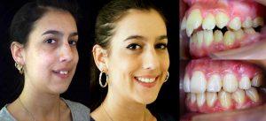 microtornillos dentales o apoyos óseos en Arquifacial