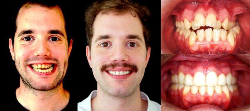 Hoy día, en las consultas de ortodoncia especializadas en cirugía ortognática, esta es la prueba de elección pues nos permite predecir a la apnea,