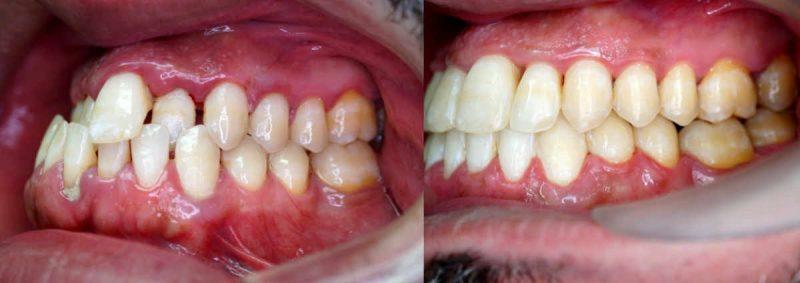 La colocación de los microtornillos dentales o apoyos óseaos es un procedimiento mínimamente invasivo y sin dolor.