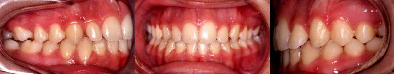 CASO CLÍNICO 4 de Apoyos Óseos o Microtornillos.. Vemos la evolución de la relación labio/diente a lo largo del tratamiento.