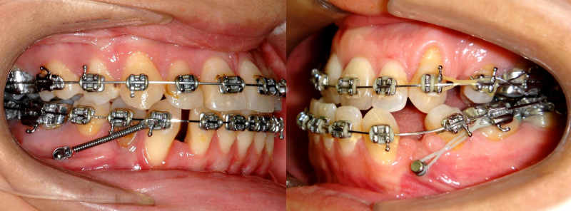 Imágenes de microtornillos o apoyos óseos en boca.