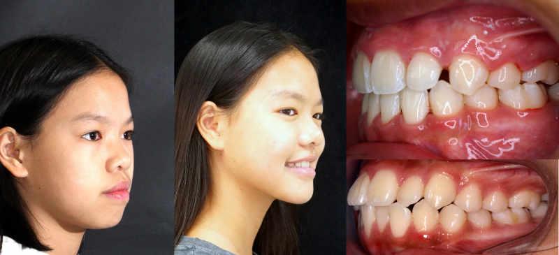 microtornillos u apoyos óseos dentales tratamiento en el centro odontológico arquifacial